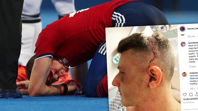 Koniec kariery zamiast igrzysk? Brytyjczyk stracił wzrok po uderzeniu piłką