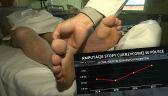 Wzrasta liczba amputacji z powodu stopy cukrzycowej