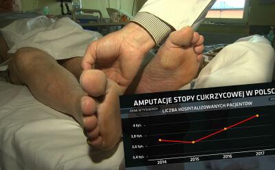 76d955de0a18b8 Lekarze alarmują w sprawie stopy cukrzycowej - oglądaj wideo TVN24