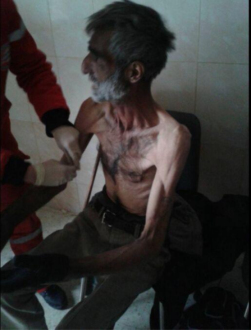 Wychudzony mężczyzna w punkcie medycznym w Madai