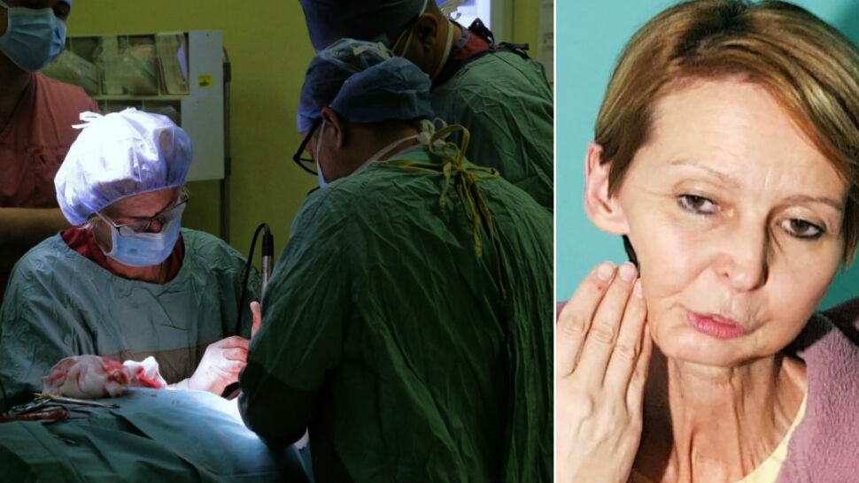 Polscy lekarze liderami w rekonstrukcji twarzy, głowy i szyi