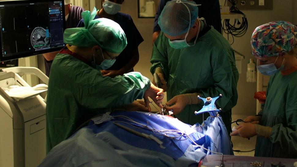 Guz mózgu u 82-latka usunięty z pomocą lasera. Pierwszy taki zabieg w Polsce