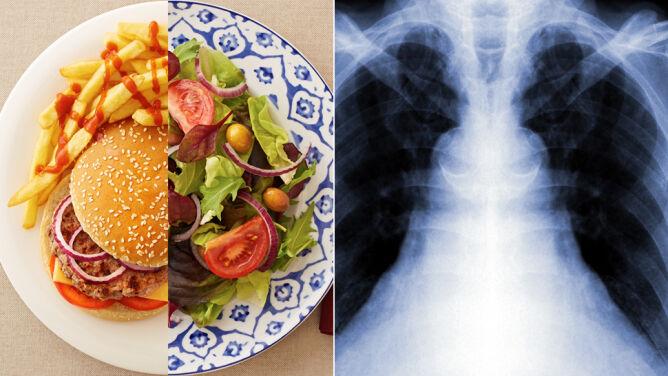 """""""Złe"""" węglowodany podnoszą ryzyko rozwoju raka płuc"""